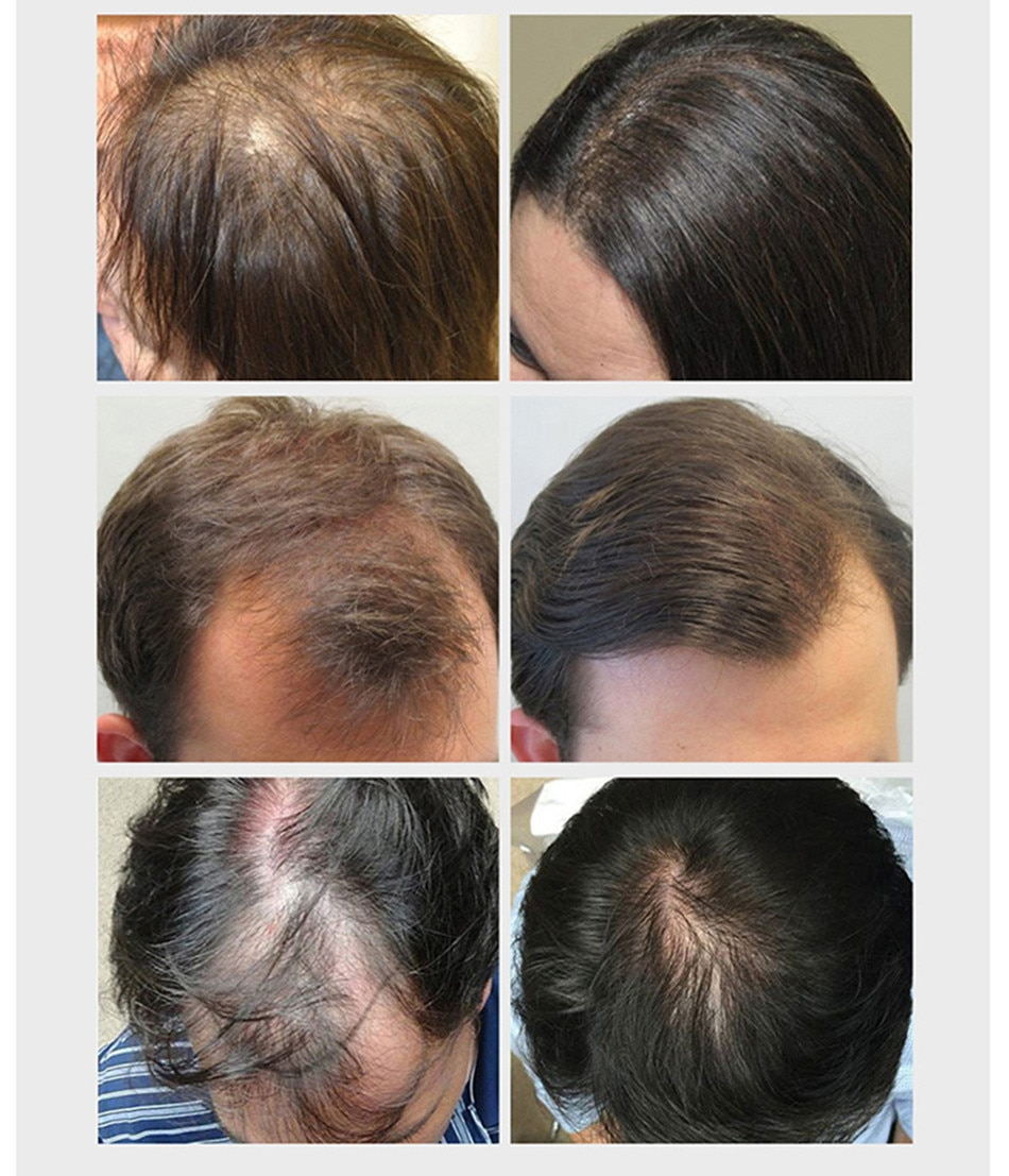 Unisex Ginger Hair Growth Essence